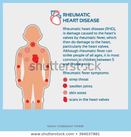 Vector Infographic Rheumaticheartdisease Stock Vector. Foaa Anesthesia Services Wireless Insulin Pump. Quotes For Whole Life Insurance. Wireless Home Alarms System Marketing E Book. Leak Detection In Pipes Tektronix 2430a Manual. Storage Units In Charleston Sc. New Jersey Manufacturers Homeowners Insurance. Doctorate Management Information Systems. Prime America Life Insurance