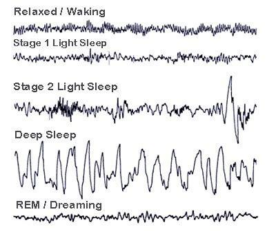 Brain Waves during Sleep Stages