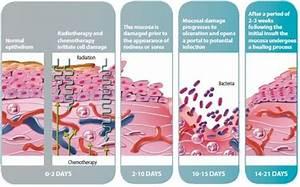 Cancer Pathophysiology Diagram