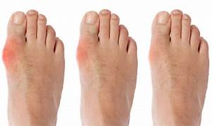 Gout Symptoms  Diet  Weight Loss And Water Can Ease