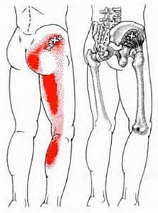 Gluteus Minimus - Trigger Point Map   Health Myofascial ...