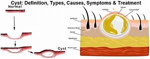 Cyst  Definition  Types  Causes  Symptoms  Treatment
