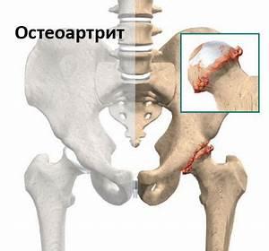 Нестероидные противовоспалительные препараты при артрите коленного сустава