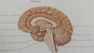 Mid Sagittal Brain Unlabeled