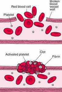 How Blood Clots - Blood Disorders
