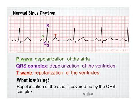 qrs complex of the atria qrs nursing school