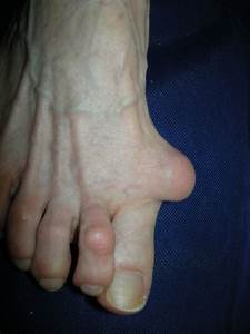 Relieve Your Painful Bunions  With Feet Care