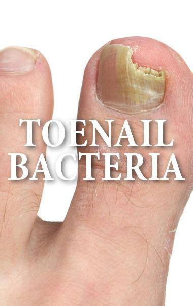 toenail fungus remedies ideas  pinterest