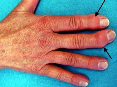 spezielle formen der arthrose