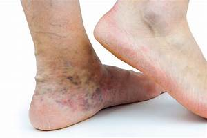 Venous Dermatitis: Untreated Varicose Vein Complications ...