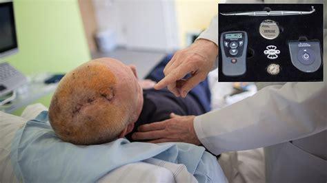 parkinson schrittmacher im gehirn reduziert das zittern