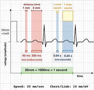 Ecg Rate Interpretation  U2022 Litfl Medical Blog  U2022 Ecg Library
