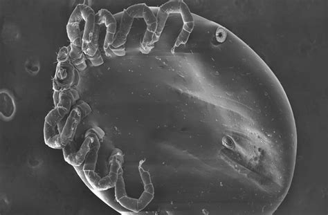 milben und bakterien ausloeser fuer die hautkrankheit