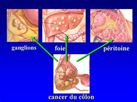 tumor dikke darm