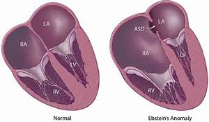 Ebstein U0026 39 S Anomaly Of The Tricuspid Valve