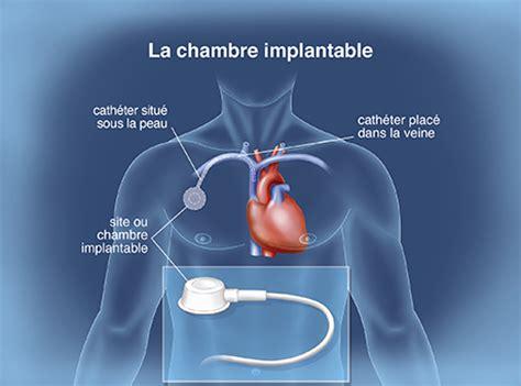 pose de perfusion sur chambre implantable le traitement en pratique la prise en charge de la