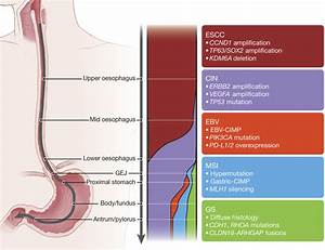 Study Points To Genetic Subtypes Of Esophageal Cancer