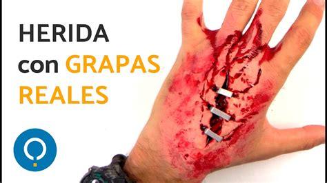 corte en la mano heridas falsa con l 225 tex corte en la mano con grapas