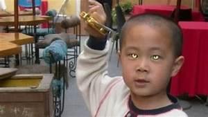 Les Yeux Les Plus Rare : cet enfant a les yeux les plus flippants du monde ~ Nature-et-papiers.com Idées de Décoration