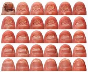 Уксусная эссенция при грибке ногтя отзывы