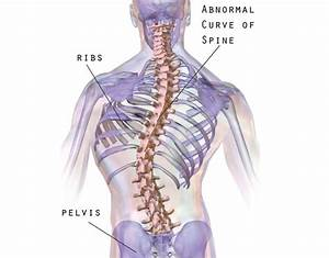 What Are The Main Causes Of Scoliosis  Can It Be Genetic