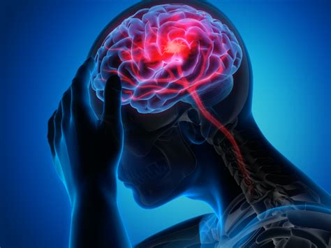 PTSD may heighten stroke risk in younger adults | American