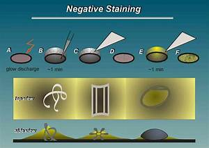 Pics For > Negative Stain