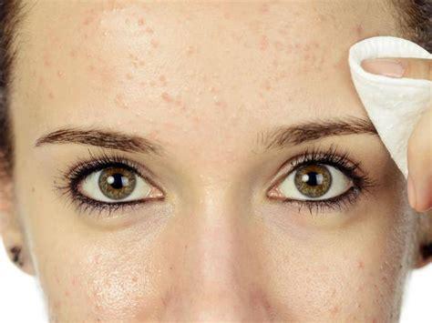 acne alimentazione acne e alimentazione occhio a questi 5 cibi possono