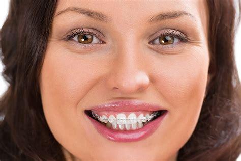 braces hurt sc family dentistry