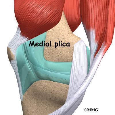 Plica Syndrome   eOrthopod.com