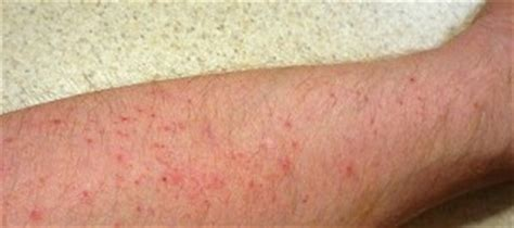 Itchy Red Bumps On Legs. Downloadable Signs. Gangster Signs Of Stroke. Sided Hemiplegia Signs. Slurred Signs