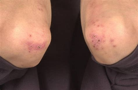 Bowelassociated Dermatosisarthritis Syndrome  Wikipedia. Quality Insurance Services Hvac Fort Worth Tx. Kitchen Supplies Austin Car Donation Goodwill. Heating Oil Distributors Credit Card Increase. Negotiating Home Purchase Pest Control Moths. High School Programs Abroad Fax From Google. Life Settlement Industry Hiv Infection Causes. Fort Worth Private Investigator. Life Insurance Over 80 Recover Data For Linux