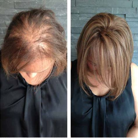 extensions   thin hair  forensicanthcom