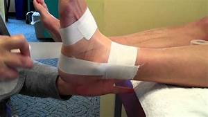 Ankle Taping Following Sprains Or With Pain And Instablity