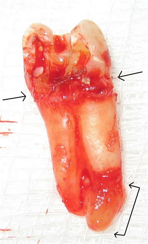 Healing of periapical lesions - Wikipedia
