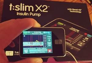 Tandem Diabetes Basal Iq And Beyond