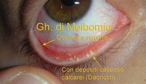 Bruciore All Interno Glande by Dott Carlo Benedetti Autore A Dott Carlo Benedetti