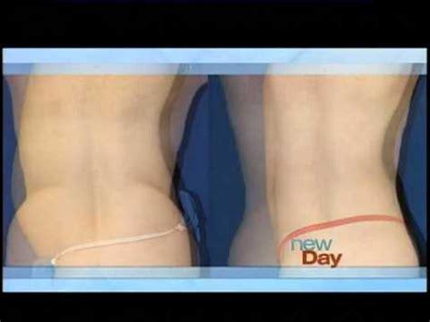 liposuction athenix body sculpting compares micro body