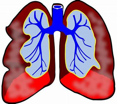 Lungs Cartoon Clipart Clip Doctors Clipartmag