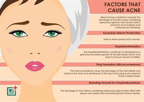What You Need To Know About Cystic Acne Stages