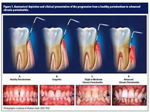 What is Periodontal Disease (Gum Disease) | Desert Ridge ...