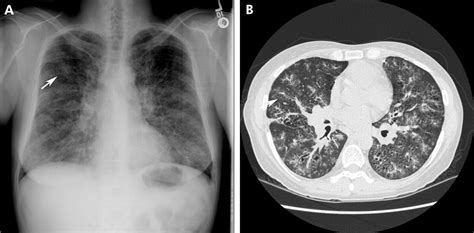 challenges  pulmonary fibrosis  cystic lung disease