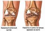 Курс лечения препаратами артроза коленного сустава