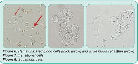 elevated whitish blood cells in urine johny fit