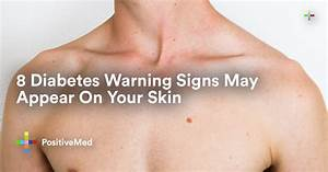 8 Diabetes Warning Signs May Appear On Your Skin - PositiveMed