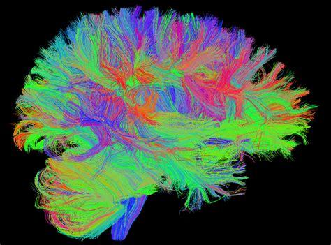 computers  brain scans  diagnose psychiatric