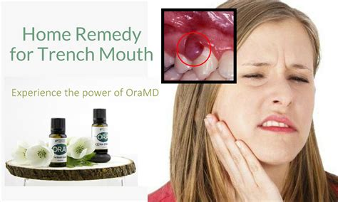 What Is Trench Mouth Remedies Oramd Blog
