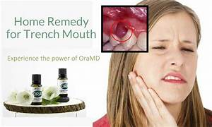 severe tooth pain remedy