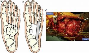 Reconstruction Of The Midfoot Using A Free Vascularized
