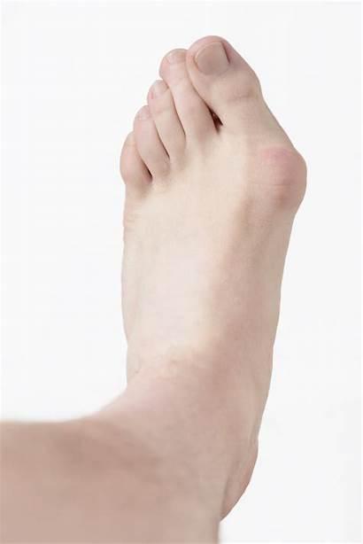 Bunion Foot Pain